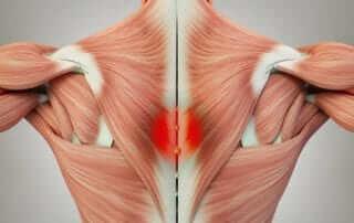肌肉激痛點徵狀