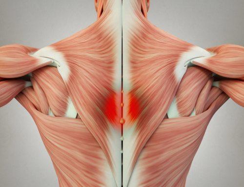 筋膜炎 – 肌筋膜疼痛症候群