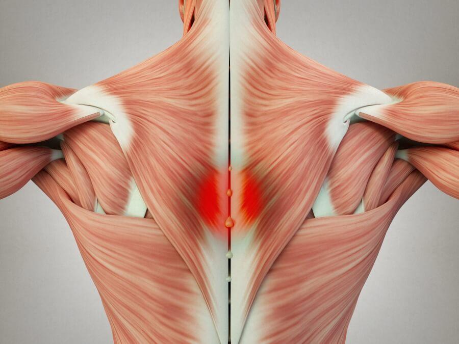 筋膜炎 肌肉激痛點