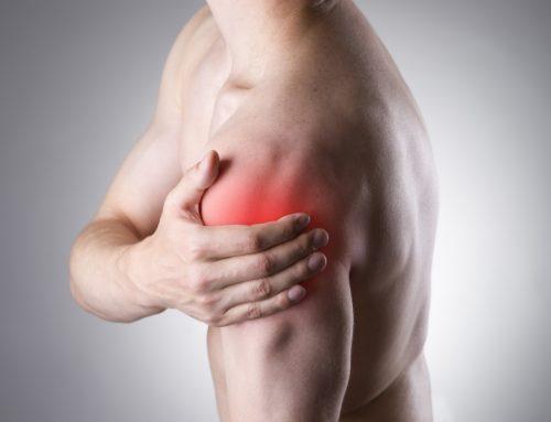 肩周炎 (五十肩)