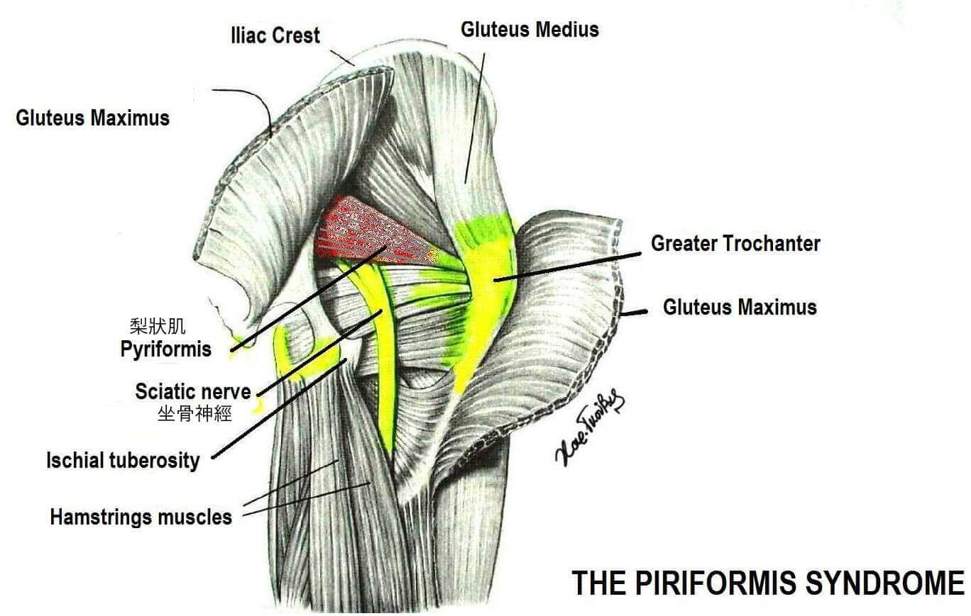 梨狀肌-坐骨神經