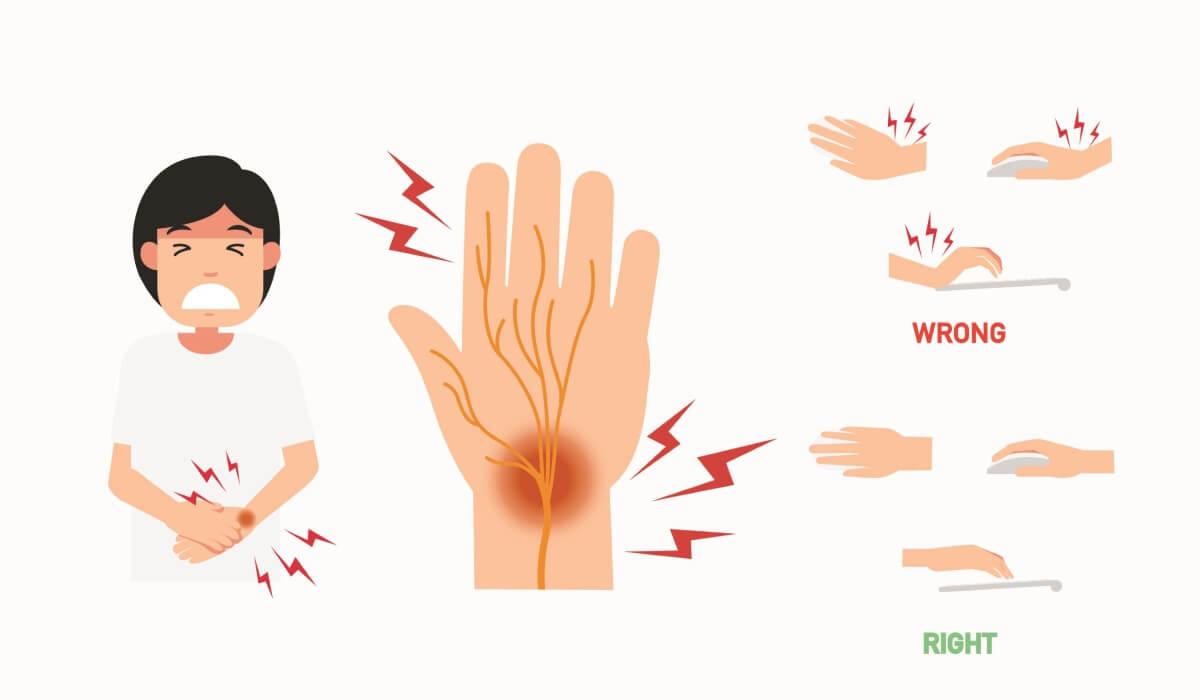 腕管綜合症 徵狀