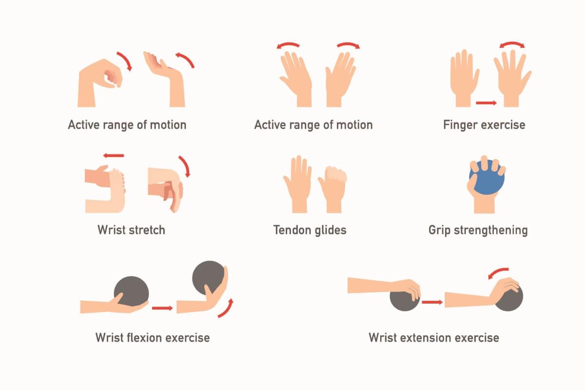 腕管綜合症 治療