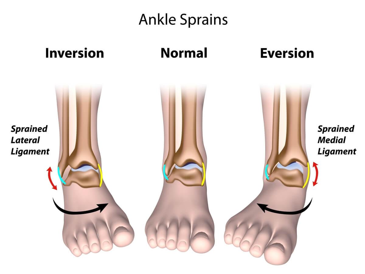 足踝扭傷 關節結構