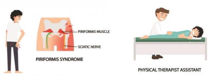 梨狀肌綜合症治療